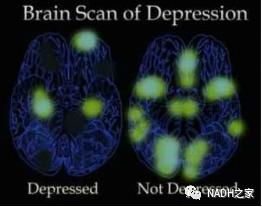 NADH研究 | 临床证实,93%的人食用NADH让抑郁症情况有所缓解